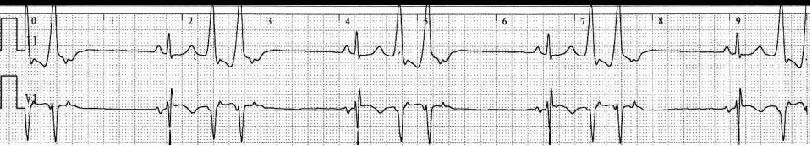 血压信号放大电路